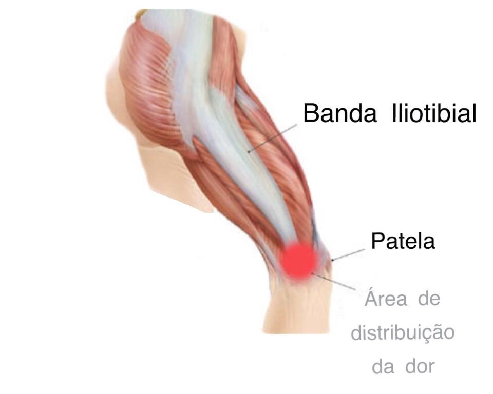 pilates banda iliotibial