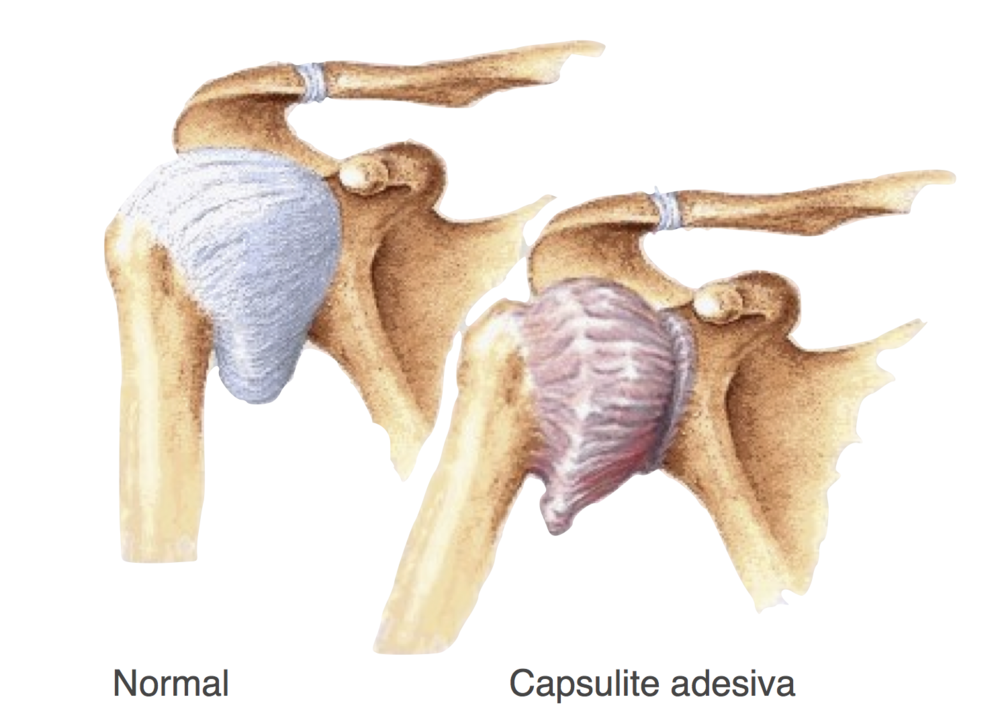 capsulite adesiva pilates