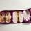 Thumbnail: Gold and purple stripe
