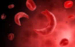 sickled cells photo.jpg
