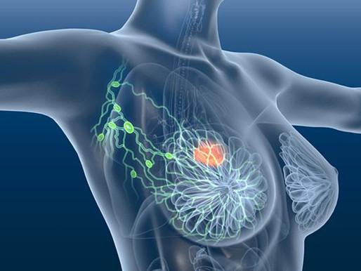 Il futuro nella diagnosi del cancro al seno