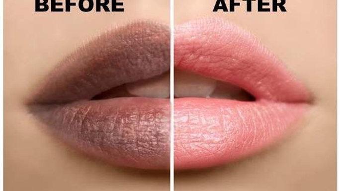 Lip Brightening Scrub Kit