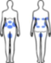 Behandlungszonen für Kryolipolyse St. Gallen