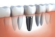 implantodontia-em-bom-jesus-da-lapa_edited.jpg