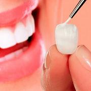lente-de-contato-dental.jpg