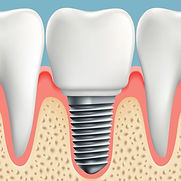 implant supported crown.jpeg