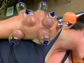We are now offering Myofascial Cupping!