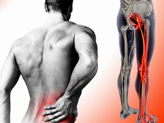 Bolečine v spodnjem delu hrbta, ki se širijo v nogo