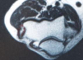 テニス肘重症例のMRI 2