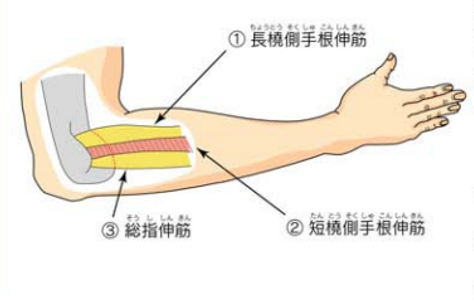 テニス肘は肘外側にある手首を伸ばす筋肉の障害です