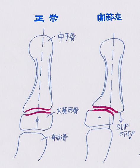 母指CM関節 正常と関節症の違い