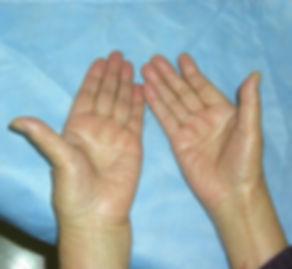 母指CM関節症 手の写真