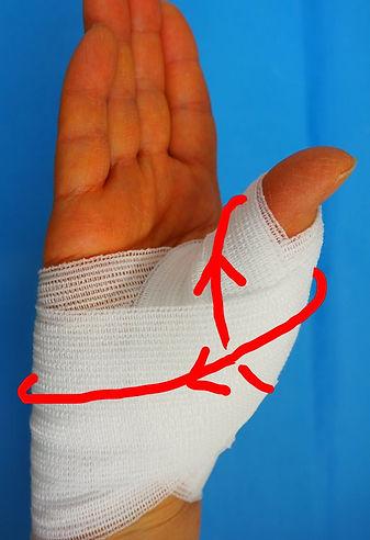 母指CM関節症 包帯固定法
