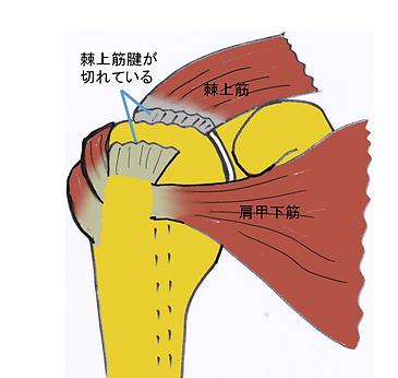 棘上筋腱断裂.PNG
