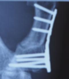 母指CM関節症 矯正骨切術