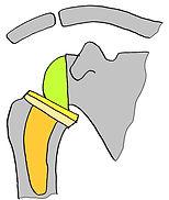 肩リバース人工関節 - コピー.jpg
