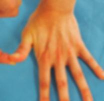 チェーテスト 母指CM関節症の誘発テスト