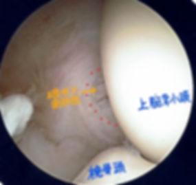 テニス肘重症例の内視鏡手術