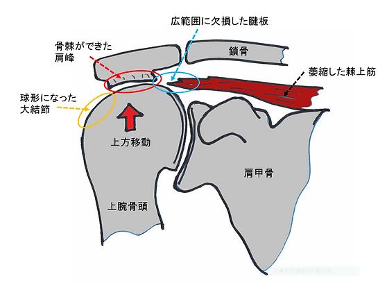 腱板広範囲断裂 骨頭上方化.PNG