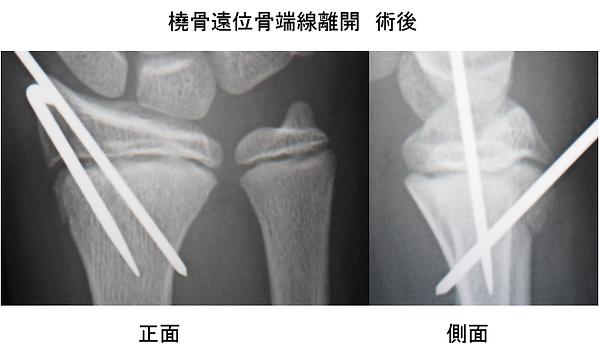 骨端線離開2.PNG