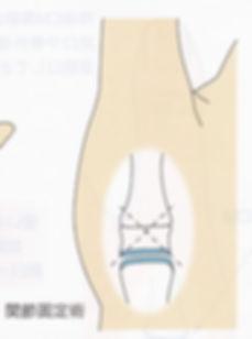 母指CM関節症 関節固定術