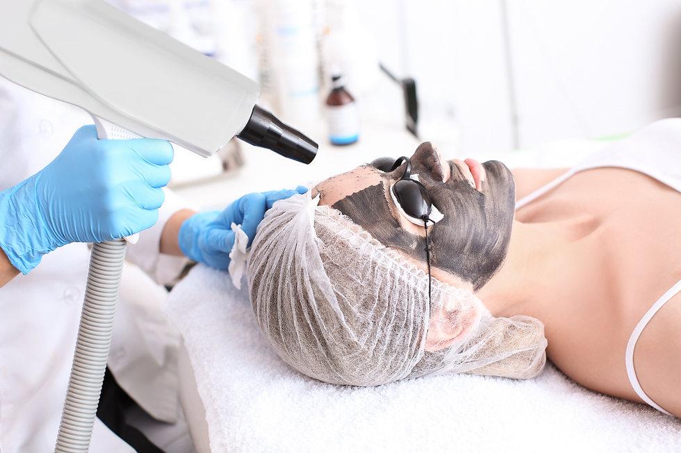 Young woman undergoing carbon peeling procedure in salon.jpg