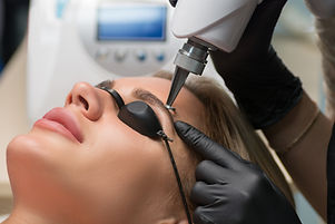 Laser removal of permanent makeup. The b