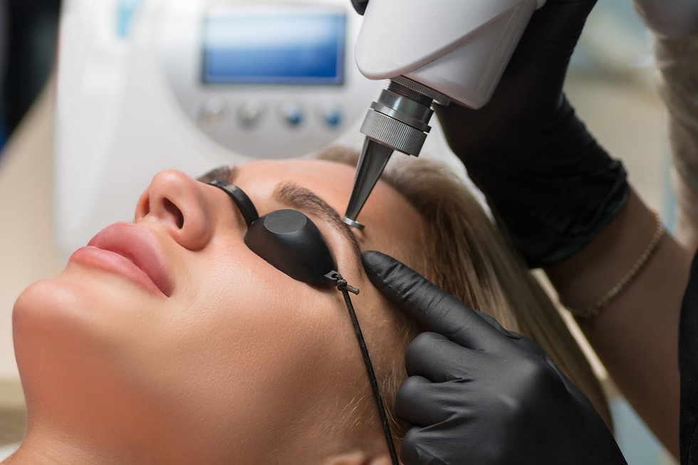 Laser removal of permanent makeup. The beautician removes the tattoo from the eyebrows..jp