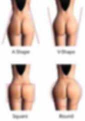 butt-lift-6.jpg