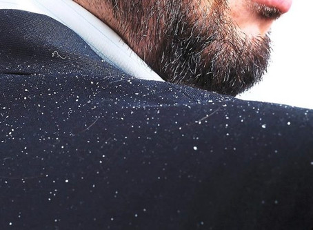 Welcome Winter, Welcome Dandruff