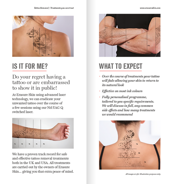 Tattoo removal leaflet