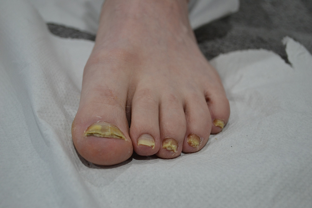 Left foot with bad onycomycosis nail fungus