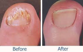 Toenail Fungus Removal beore and after