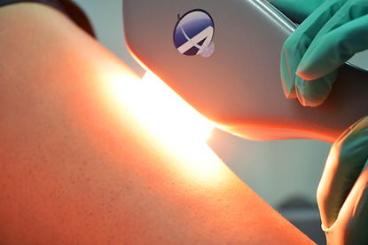 Astanza laser flash on tattoo