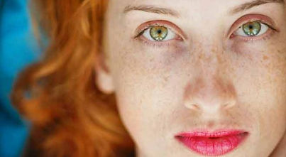 Freckles, light skin and red hair