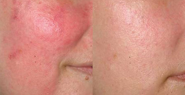 Dermpen treatment on Rosacea before and after
