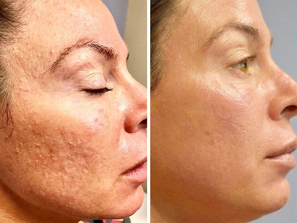 Dermapen Milia treatment before and after