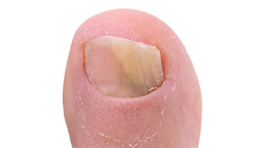 Large Toe fungus