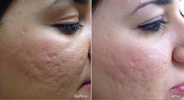 Dermapen Acne treatment before and after