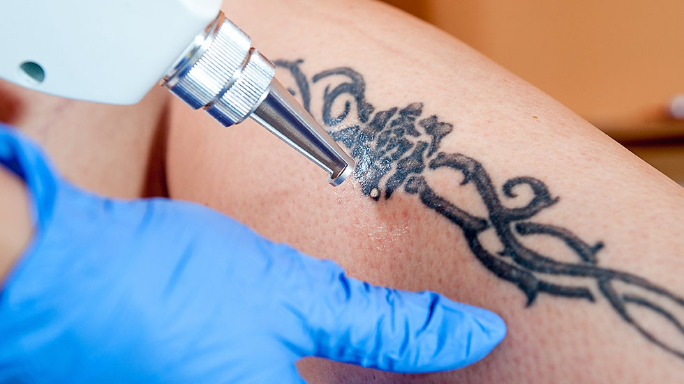 VTCT (ITEC) level 5 cert in Laser Tattoo Removal