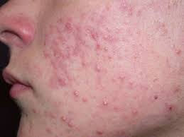 Acne on face cheek
