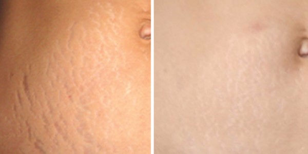 DermaPen treatment on Stretch Marks before and after