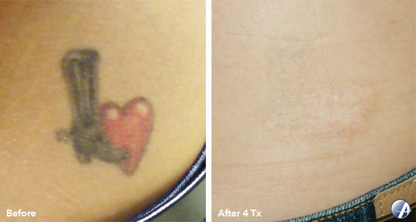 Laser Tattoo Removal - X-small