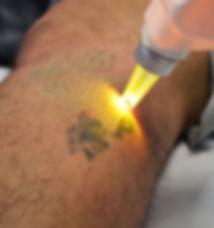 Astanza Laser Treatment of a Tattoo