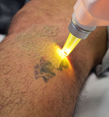 Astanza Laser Treatment of a Tattoo