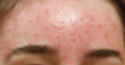 Significant Acne on Forehead