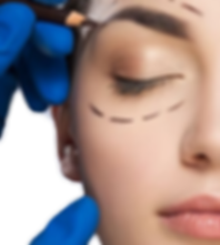 eyelid-surgery-procedure-kentucky_edited