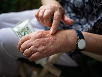 Understanding Eczema 恼人的湿疹