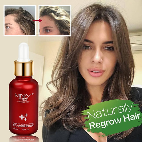 Hair Growth Essence Oil Anti Hair Loss for Growth Treatment Thicker Hair Serum
