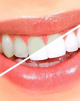 Dental-Bleaching.jpg
